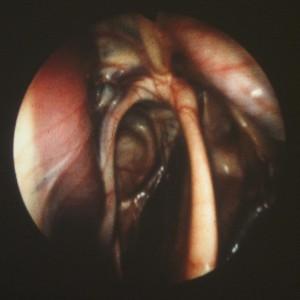 koepchen endoskopie3